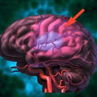 brain-stroke[1]